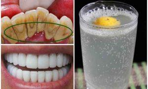 Apa de gură care îndepărtează placa și tartrul în numai 1 minut