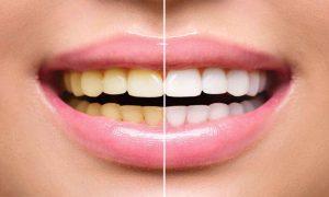 Cum îți albești dinții acasă cu usturoi